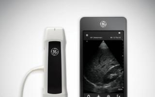 Ultrazvuk pro nevyléčitelně nemocné