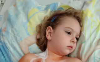Auto pro Ninušku, které byl zjištěn nádor na pravé ledvině