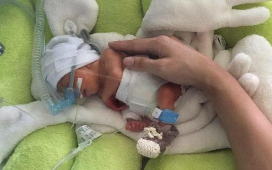 Čepičky pro předčasně narozená miminka