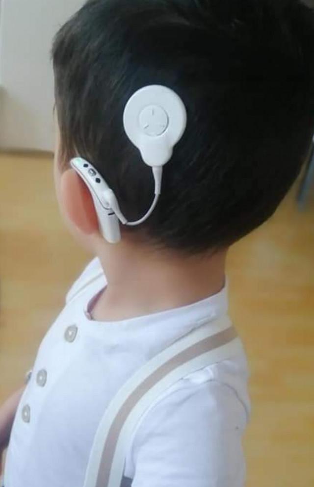 Baterie do cochlear pro neslyšícího Zdenečka